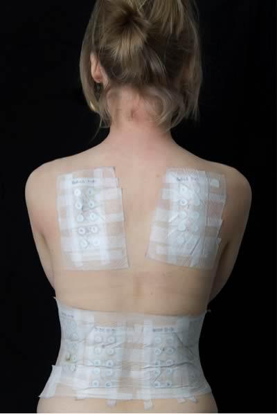 Vanguard Skin Specialists - Skin Allergies - Allergic Contact Dermatitis