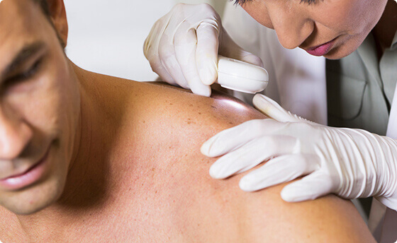 FAQs About Melanoma - Vanguard Skin Specialists in Southern Colorado