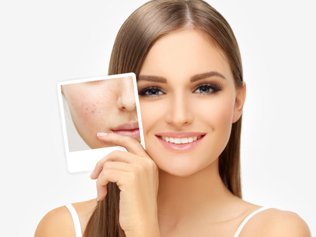 Acne: When is it time to see a Dermatologist?