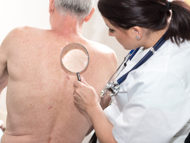 Why are men at greater risk of developing skin cancer?
